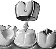 Flushing Family Dental crowns