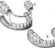 Flushing Family Dental dentures