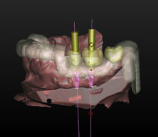 Dental Implants Queens guided-surgery-