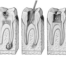 Flushing Family Dental root-canal-treatment