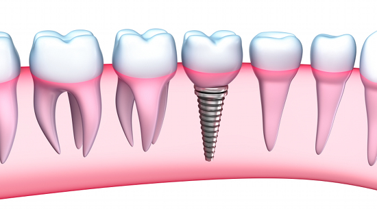 Advantages of Dental Implants at your Dentist In Flushing New York Office