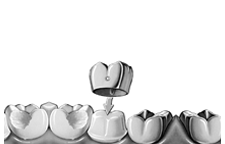 Your Dentist In Flushing New York for over 30 years